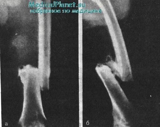 Как лечить ложный сустав при переломе шейки бедра
