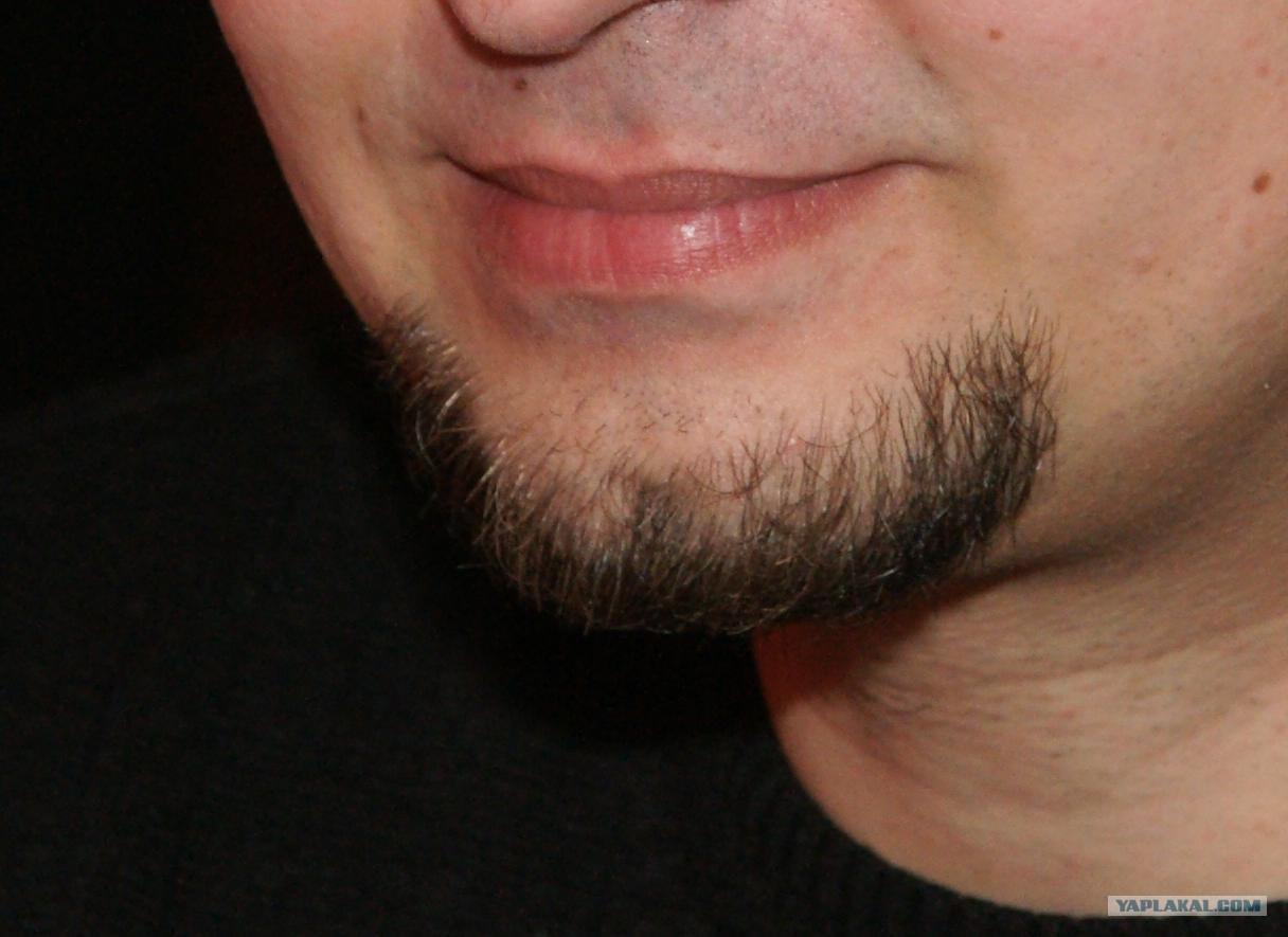 Не растет борода что делать? Есть ли шансы 83
