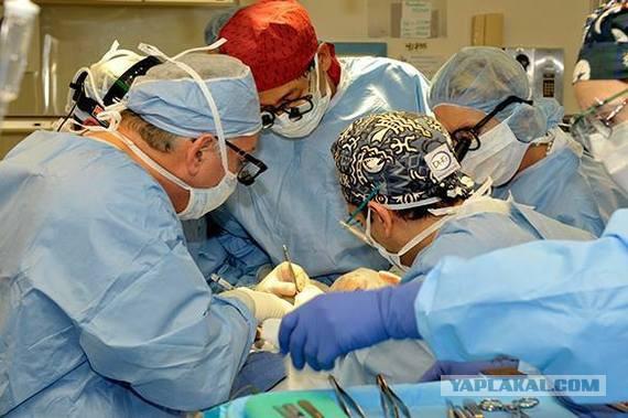 В Китае успешно завершена первая в мире операция по пересадке головы обезьяны