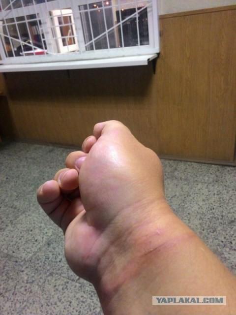 Участника «Красивого Петербурга» заковали в наручники и увезли в полицию за фотографироваие ямы
