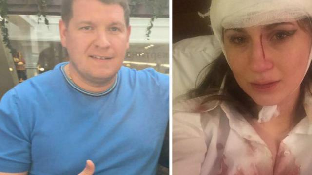В Екатеринбурге боец без правил разбил голову журналистке на «VIP-тусовке»