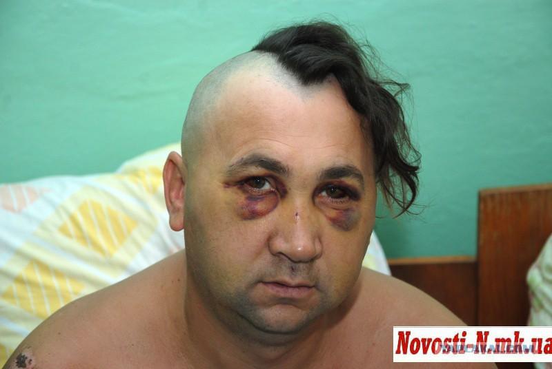 Пьяный украинец подрался с россиянином на турецком курорте и попал в реанимацию