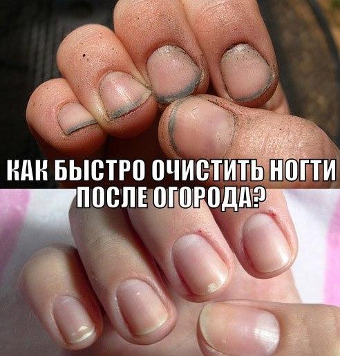 Как сделать чтобы под ногтями не забивалась грязь
