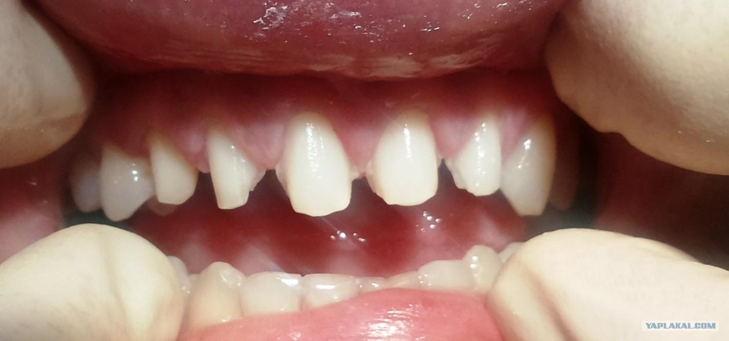 накладки на зубы виниры видео