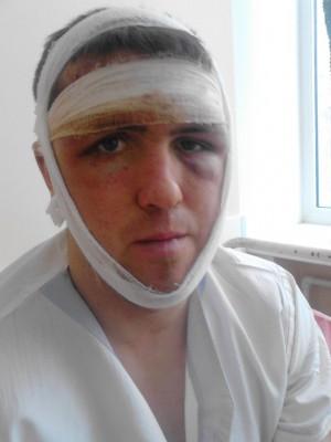 Дагестанцы до полусмерти избили парня.