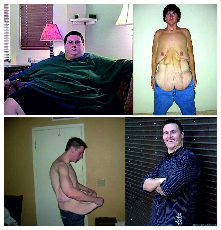 Толстая женщина и худой парень фото 10 фотография
