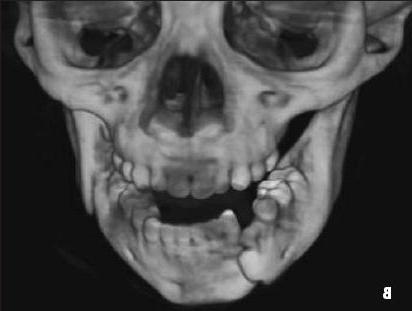 Какие открытия таит сломанная челюсть - ЯПлакалъ