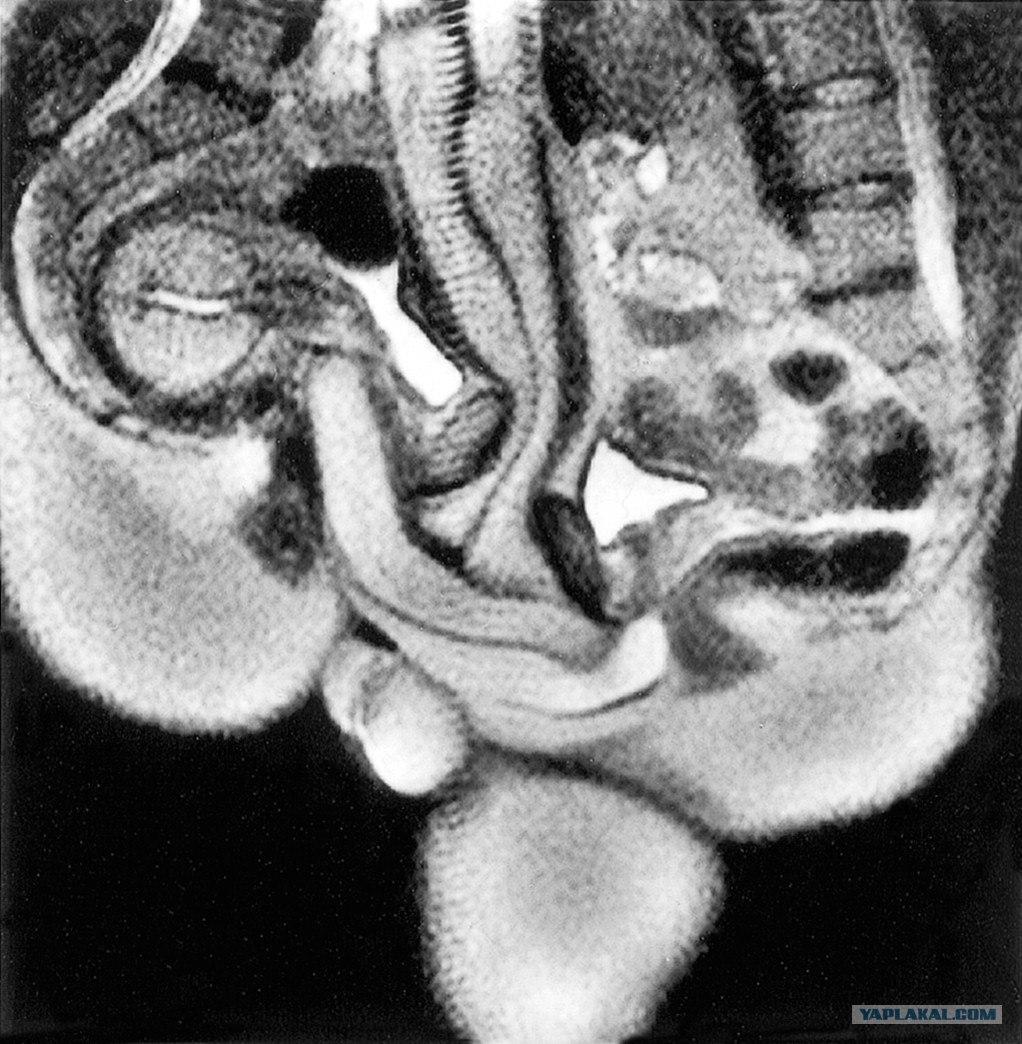 Фото рентген секса 16 фотография