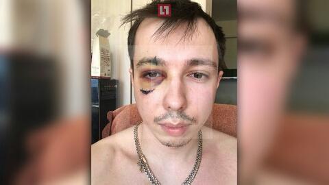 """Клиента """"Яндекс.Такси"""" избили за отказ платить наличными"""