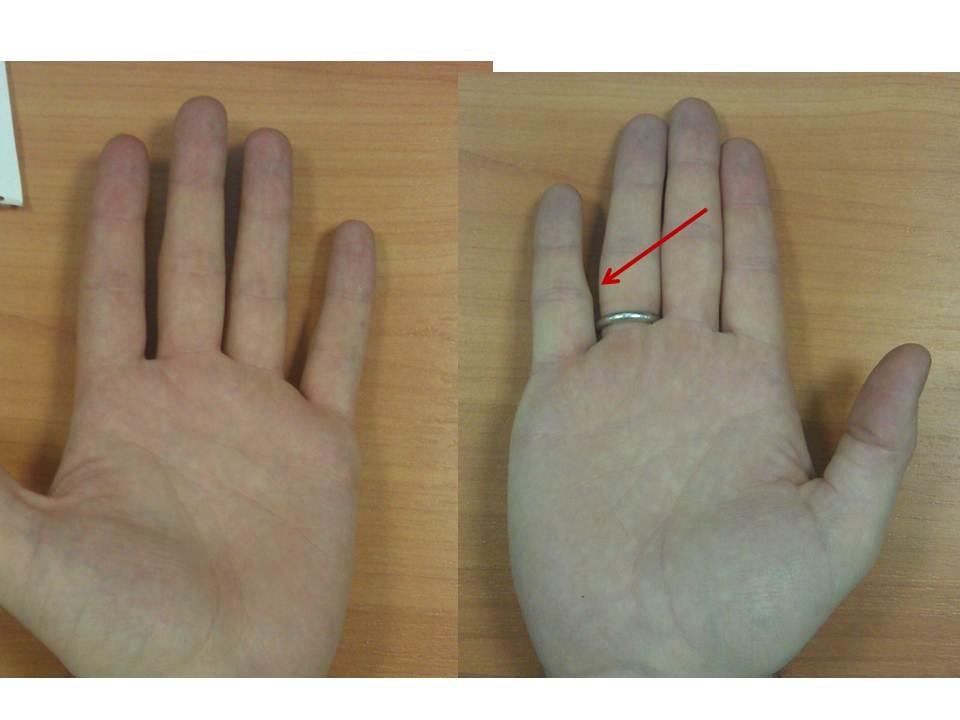 Вывих пальца как лечить в домашних условиях 772