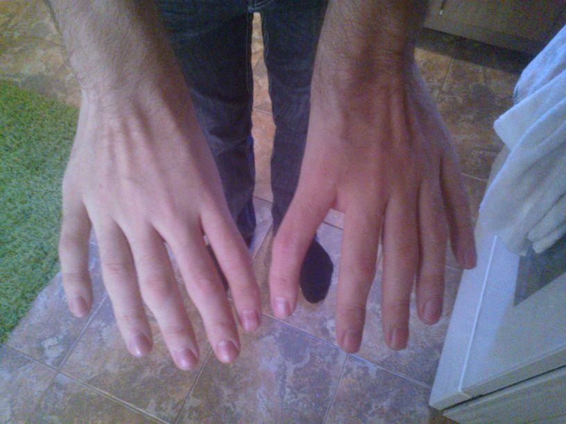 Холта—Орама синдром