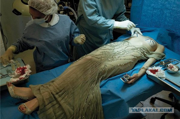 plasticheskaya-hirurgiya-intimnoy-zoni-foto
