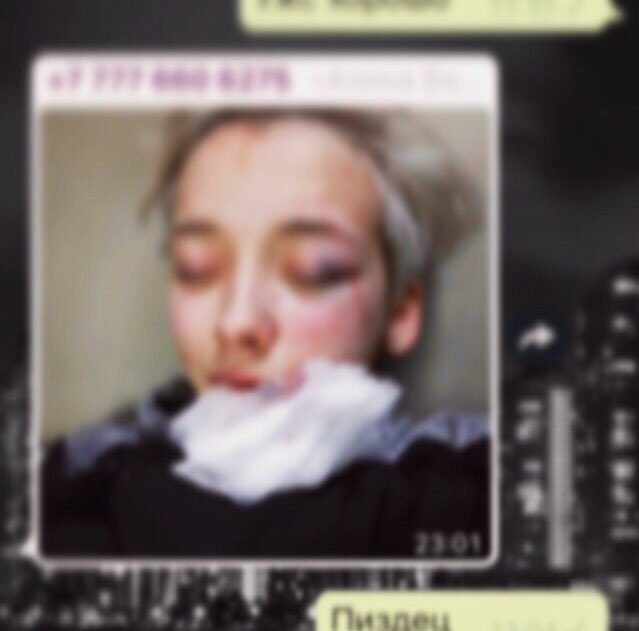В Петербурге семь мужчин избили девушку из-за внешнего вида