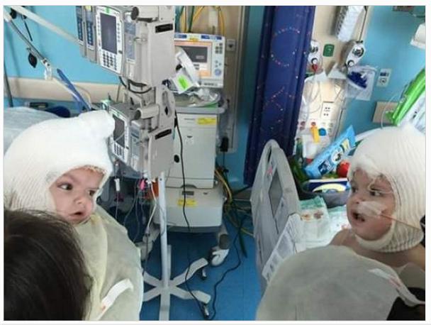 Разделенные сиамские близнецы впервые посмотрели друг на друга