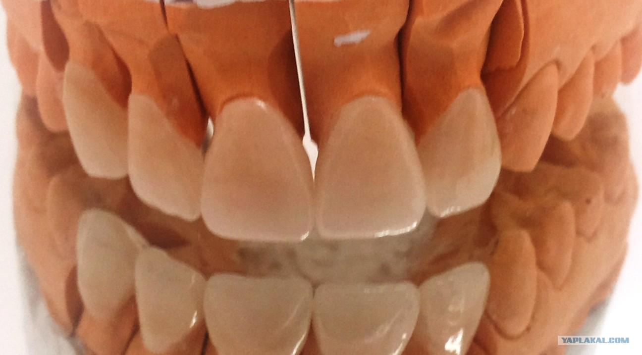Сколько весит один золотой зуб