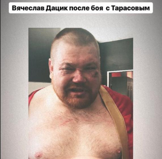 Националист Дацик проиграл бой блогеру Тарасову