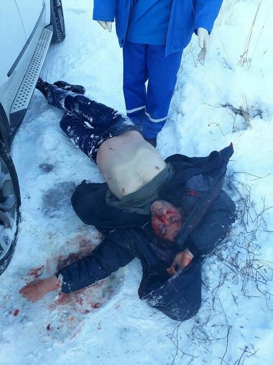 Очень мутная история из Томска где мужчина, получивший два огнестрельных ранения, забил до смерти нападавшего
