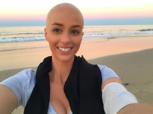 """""""Врачи говорили, что у меня проблемы с головой, пока рак пожирал всё моё тело"""""""