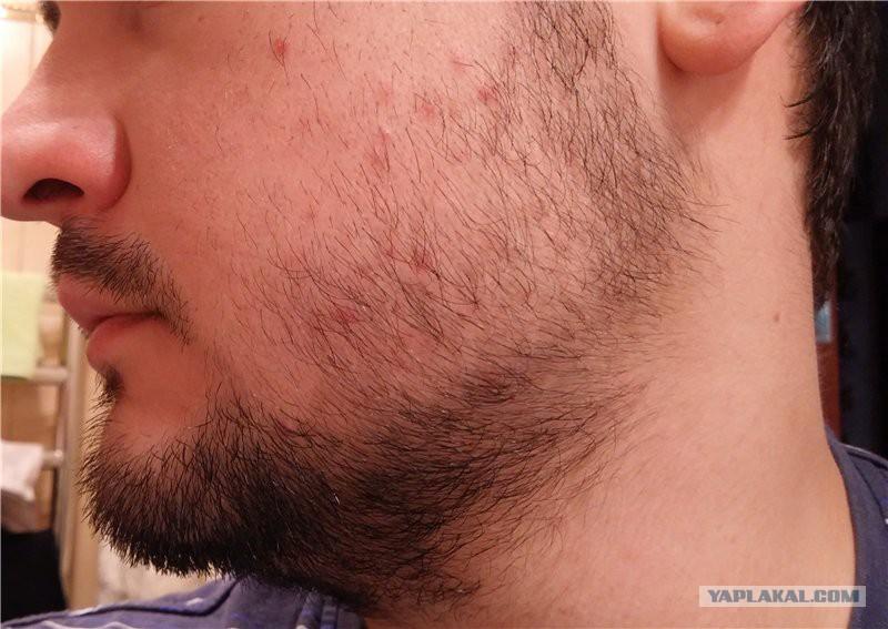 Почему на бороде появляются прыщи на