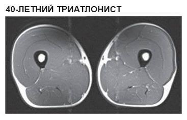Снимки МРТ мышц ног, наглядно демонстрирующие, почему стоит заниматься спортом