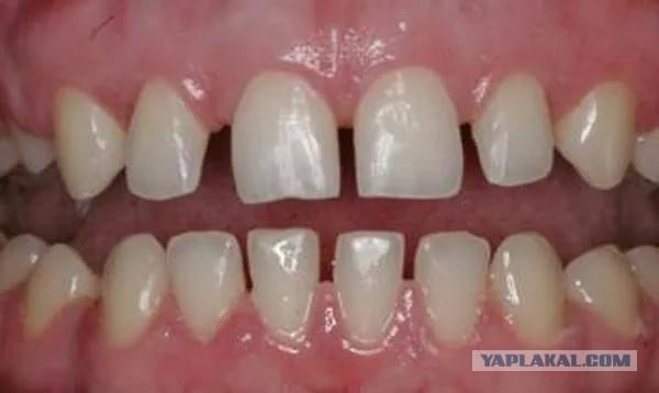Щели между зубами появилисьjpg
