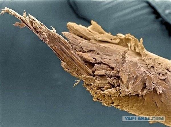 Микро-изображения из глубин человеческого тела
