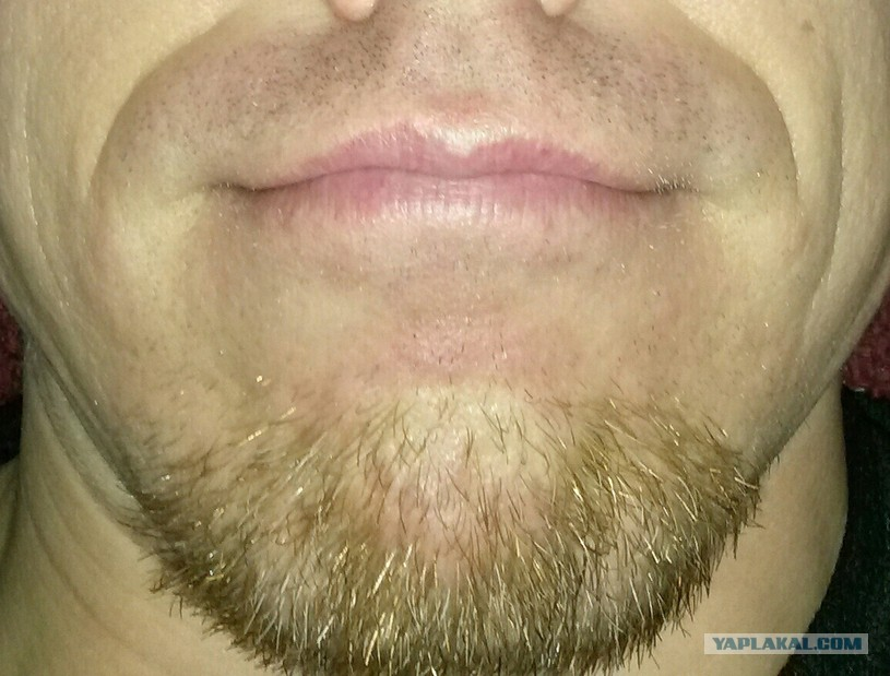 Как сделать так чтобы волосы на лице у мужчин росли