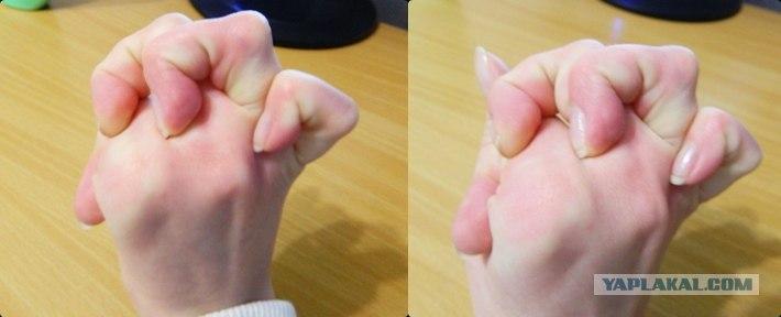 Как сделать чтобы палец большой на руках  554