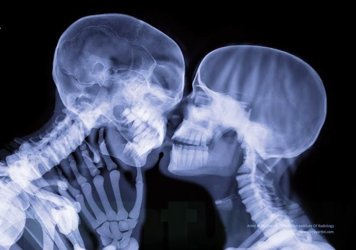 [поцелуй в рентгене]