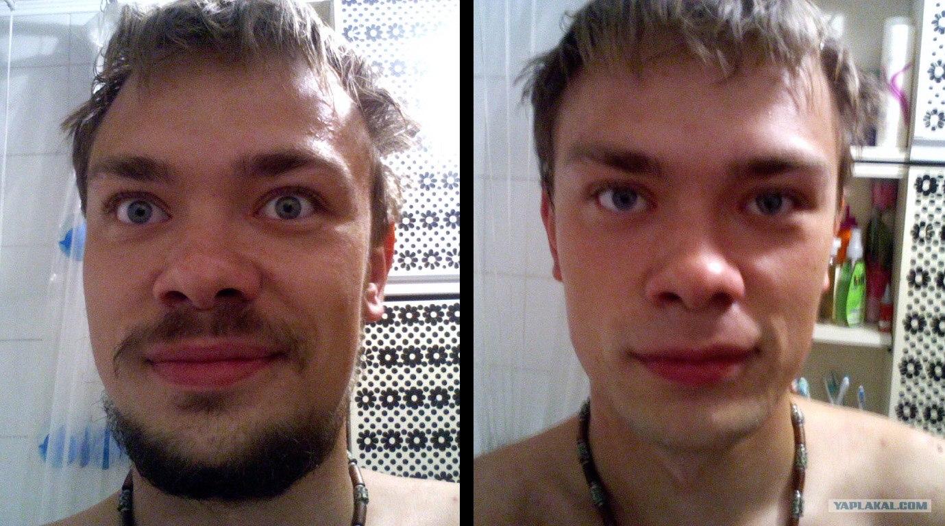 Почему в 17 лет не растет борода
