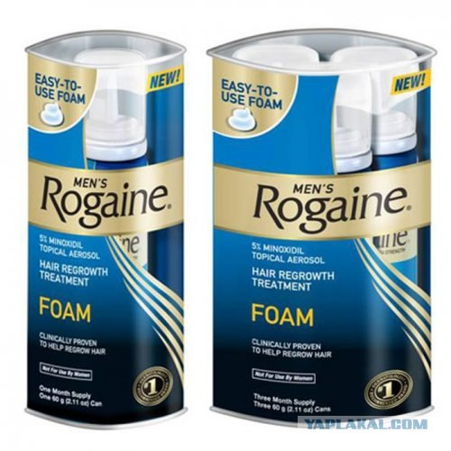 Regaine Foam Results Regaine Foam Review Youtube