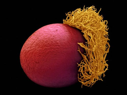 Лучшие снимки из мира медицины и биологии за 2009
