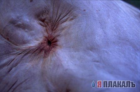 analnie-otverstiya-dam