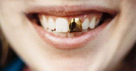Как сделать фиксы для зубов