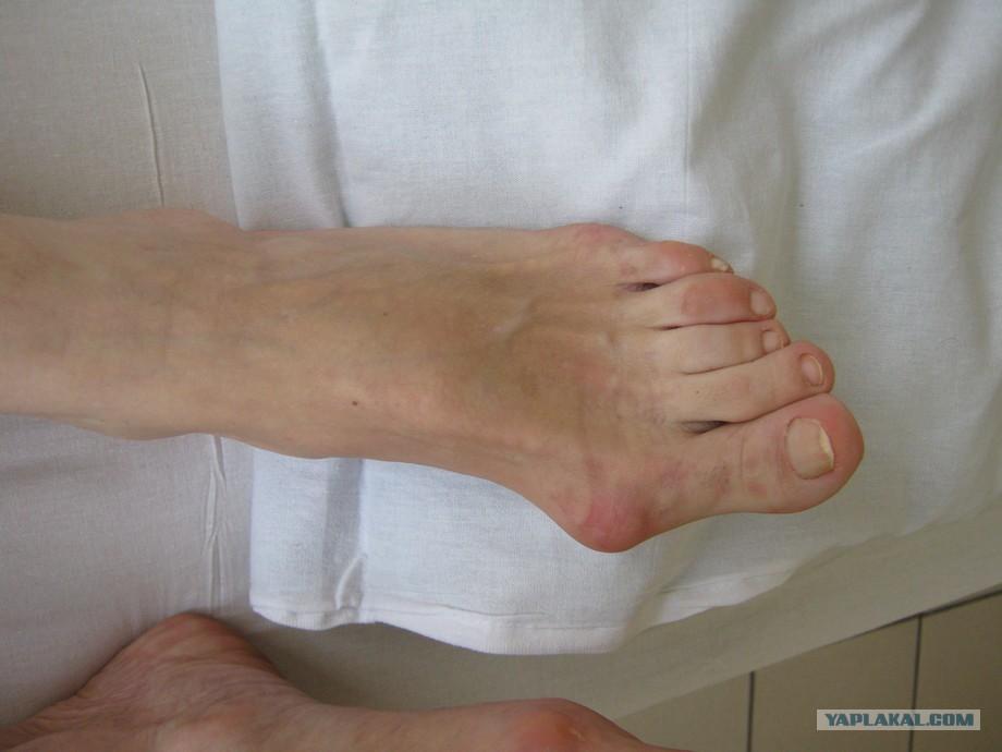 Как лечить суставы пальцев ног в домашних условиях 993