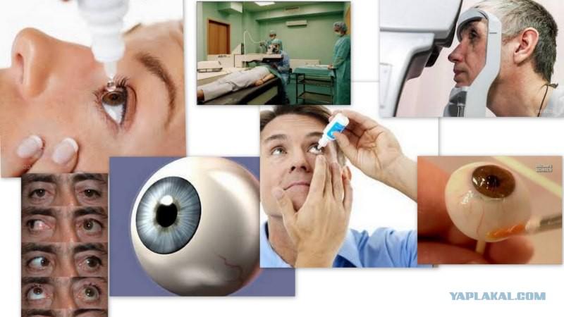Как сделать операцию на глаза близорукость 625