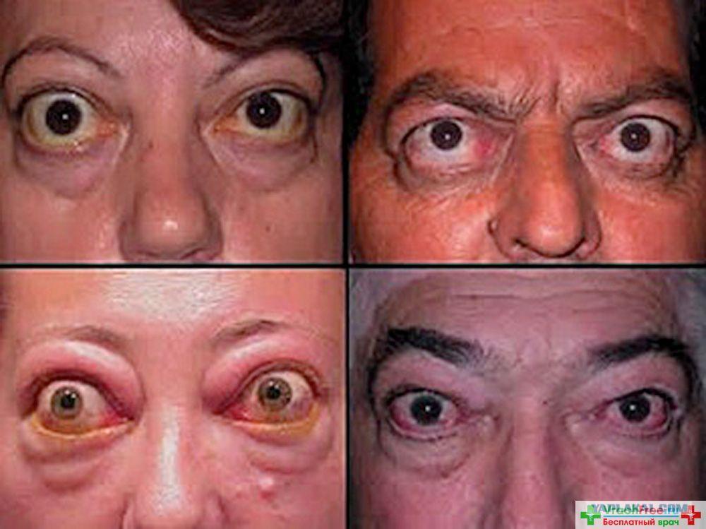 Орбитопатия грейвса проявляется характерными признаками и чаще всего возникает на фоне патологий щитовидной железы