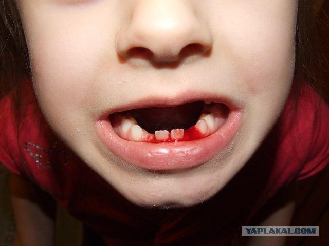 Сонник вырывать себе зуб с кровью