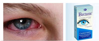 Как сделать красные глаза капли
