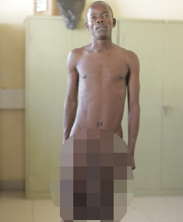 Африканский школьник попал под нож хирурга из-за слишком большого полового органа