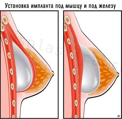 Маммопластика под мышцу отзывы