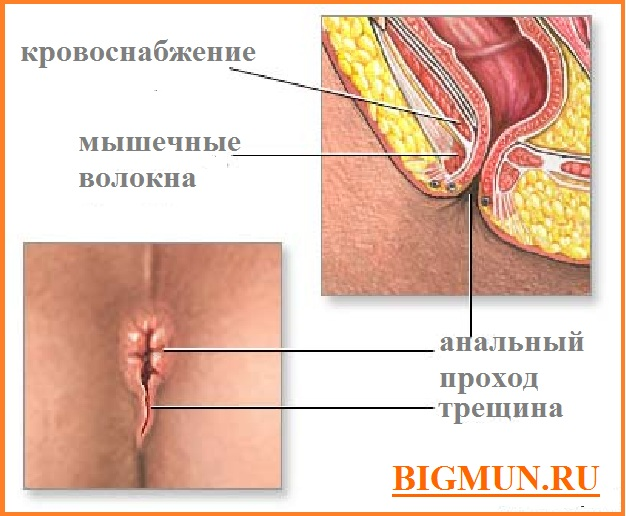 чат шишка на промежности после родов вашем