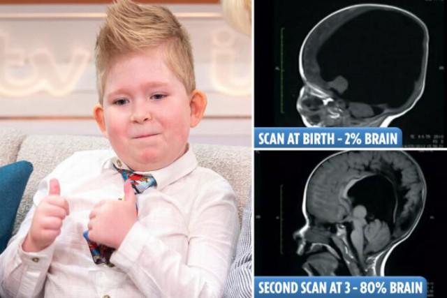 Ребенок рожденный без мозга, полноценно развивается и занимается серфингом