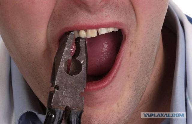 Жители Карелии массово вырывают себе зубы из-за отсутствия денег на стоматолога