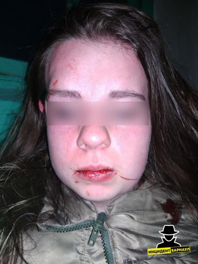 В Барнауле толпой избили школьницу