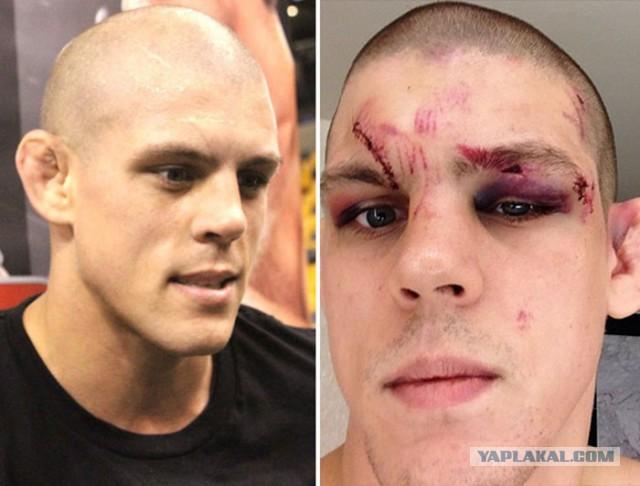 Лица бойцов до и после боя UFC.