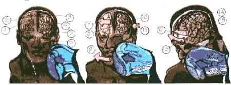 Почему при ударе в челюсть теряют сознание