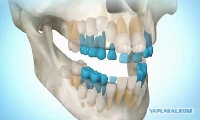 Теперь вырастить зубы станет возможным в любом возрасте