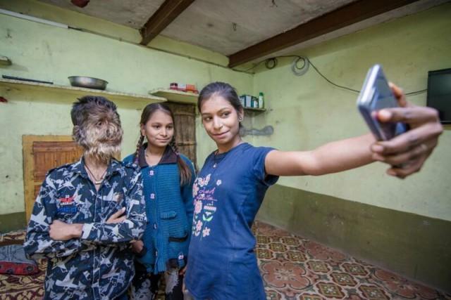 Добрый и пушистый: 13-летний мальчик из Индии страдает «синдромом оборотня»