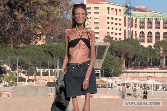 Жизнь и смерть самой худой девушки в мире